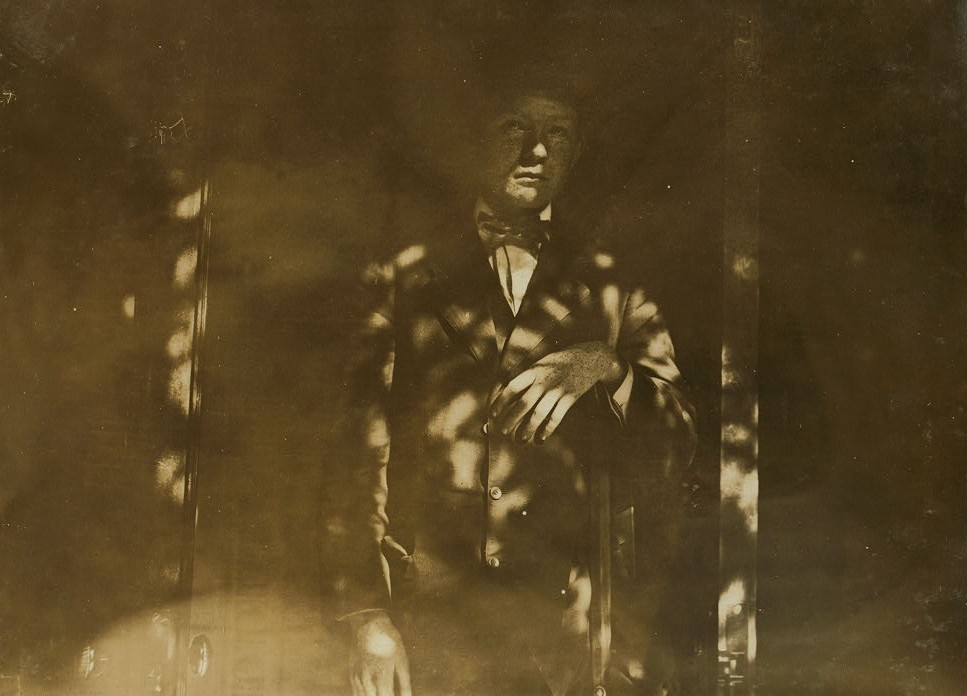 One-legged Boy from Pennsylvania Coal Mine 1909